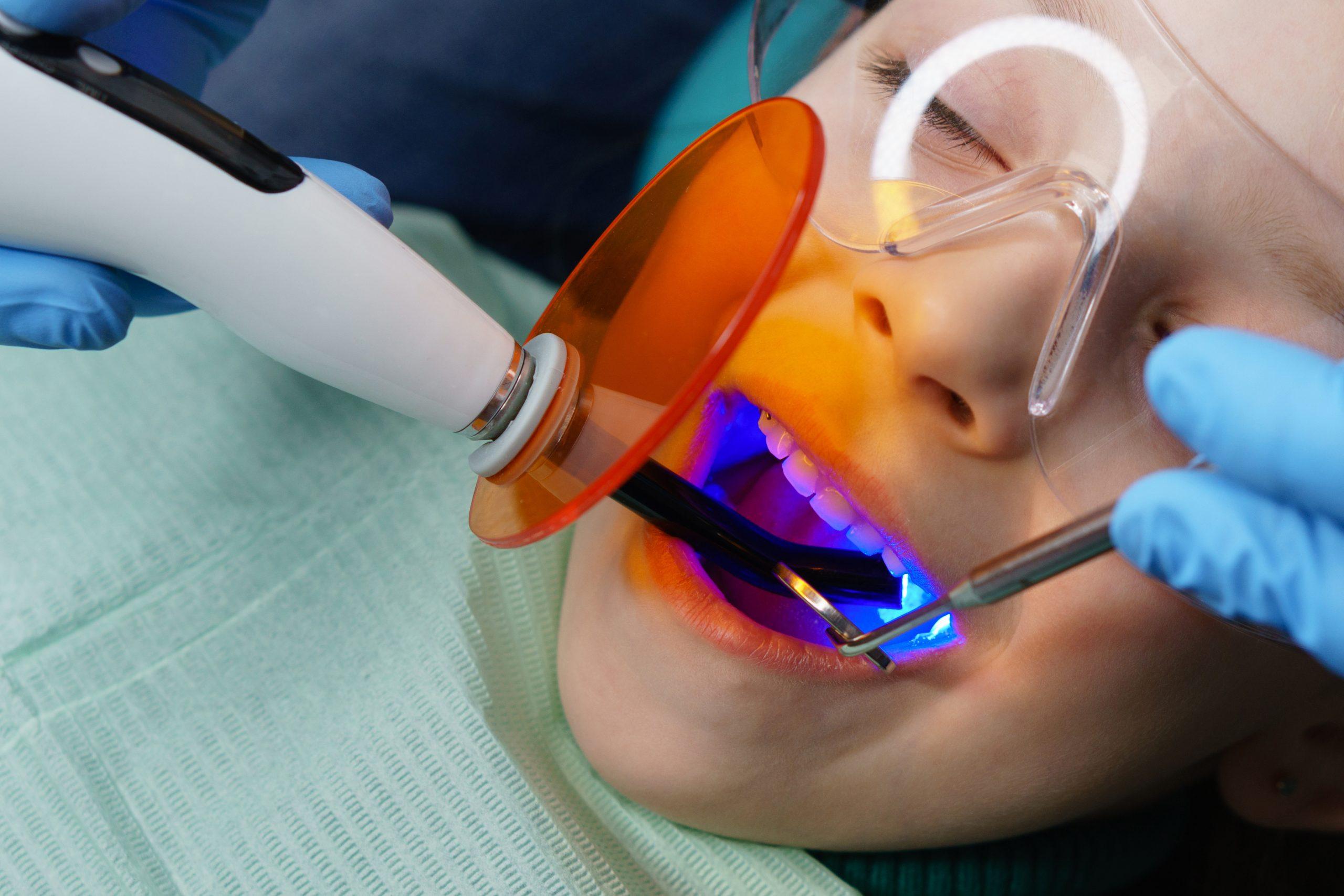 round rock dental fillings